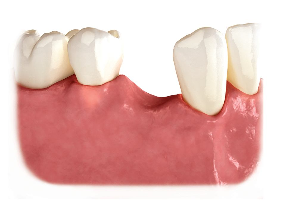 Denture missing teeth