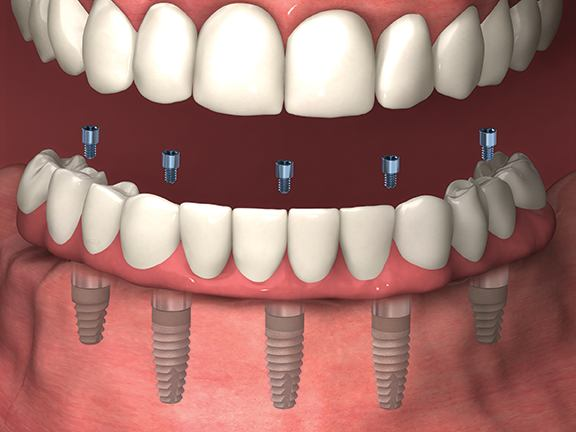 Lower jaw with dental implants